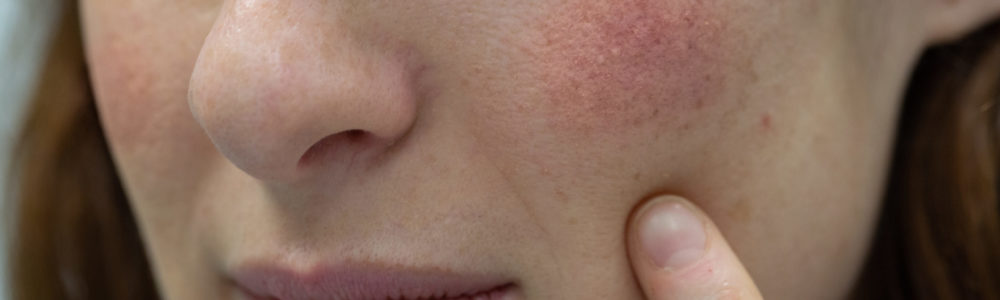 A close-up view of a young Caucasian woman points towards seborrheic dermatitis, causing rosy cheeks. Health and beauty concept.