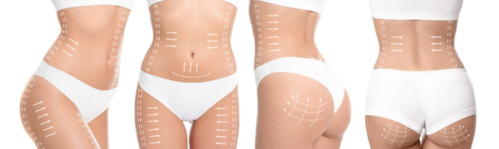 Photos of young woman with marks on body against white background, collage. Cosmetic surgery concept